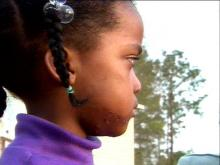 The 4-year-old girl had to undergo plastic surgery.(WRAL-TV5 News)