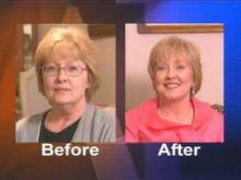 Cheryl Hardy Before After