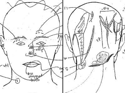 Kathleen Peterson Autopsy Diagram Wral