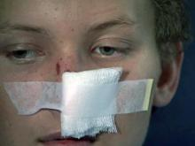 Teen survives flesh eating bacteria