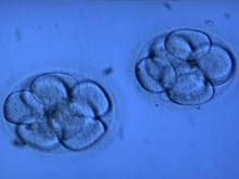 Multiple births common in cheaper fertility treatments