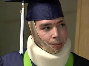 Ryan Frias, a survivor of a car crash that left nearly 80 percent of his body badly burned, accepts his high school diploma while still a patient at the North Carolina Jaycee Burn Center at UNC Hospitals in Chapel Hill.