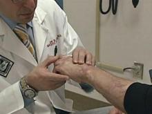 Study: How far are you from a burn center?