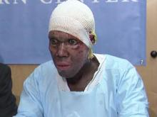 Eric Louis, Haiti earthquake, burn victim