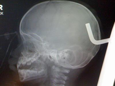An x-ray of Jessiah Jackson's skull before the metal rod was removed. (Courtesy of UNC Health Care)
