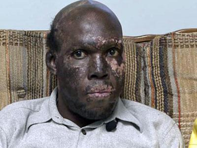 Eric Louis during an interview on Jan. 12, 2011 - one year after he suffered severe burns when a gas station exploded during a earthquake in Haiti.