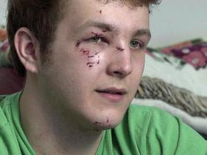 Steven Tandy got cuts to his face and a broken nose when he was hit by a car Thursday in Cary.