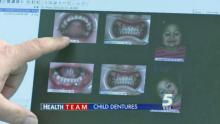 IMAGES: Rare genetic condition leads way to child dentures