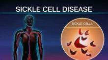 UNC researcher develops innovative drug to treat Sickle Cell patients