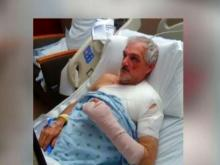Moped hit-and-run victim has long road to recovery