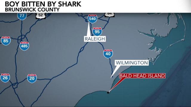 8-year-old bitten by shark at Bald Head Island