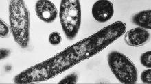 IMAGES: Fourth Legionnaires' disease death reported in NC