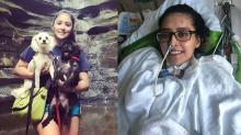 IMAGES: Before and after photos show woman's surgery, recovery after COVID