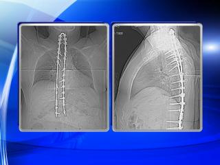 Susan Williams, of Raleigh, is suing two medical device companies and trying to sue a spine surgeon, who she says implanted this homemade U-shaped device in her neck and upper back. (Photos courtesy of Susan Williams)