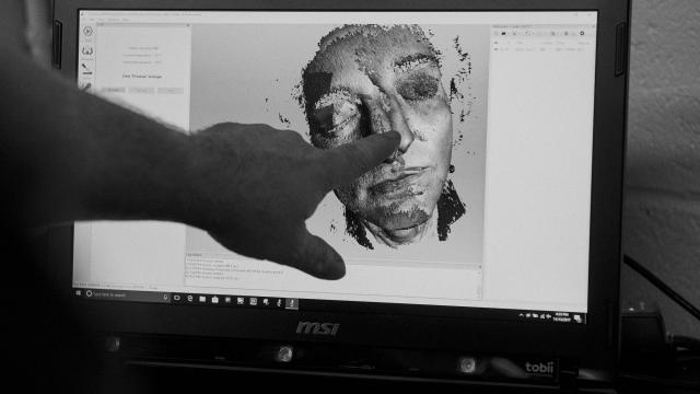 Software maps Leslie Bernstein's face at LaGuardia Studio in New York, Nov. 13, 2017. Surgeons at New York University hope a 3-D printed reproduction will encourage people to donate the faces of dying family members for use as transplants. (Vincent Tullo/The New York Times)