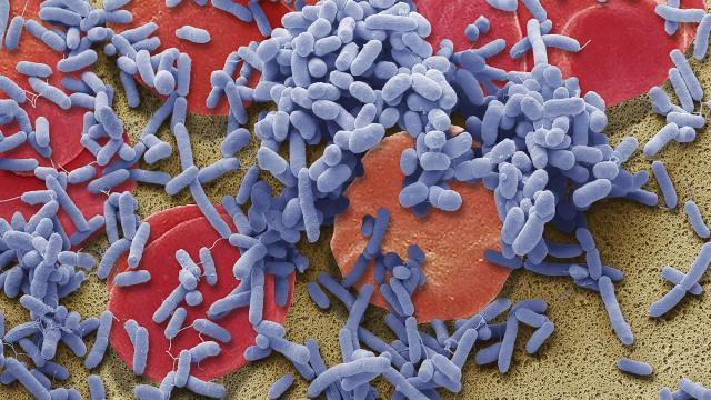 """In a photo provided by Steve Gschmeissner/Science Source, a composite colored scanning electron micrograph image of bacteria, in blue, in the bloodstream, which can provoke an immune reaction called sepsis. An advocacy group says a government trial comparing treatments for sepsis resembles """"an experiment that would be conducted on laboratory animals."""" (Steve Gschmeissner/Science Source via The New York Times) -- NO SALES; FOR EDITORIAL USE ONLY WITH NYT STORY SCI SEPSIS STUDY BY RONI CARYN RABIN FOR SEPT. 25, 2018. ALL OTHER USE PROHIBITED. --"""
