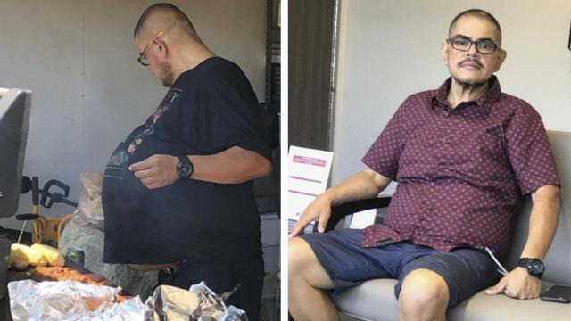 At left, Hector Hernandez in July, a few days before the operation that removed a 77-pound tumor from his abdomen, and at right, a couple of weeks after the surgery. As his stomach grew and the rest of his body got thinner, Hernandez knew something was wrong, but he never suspected it was cancer. (Hector Hernandez via The New York Times) -- NO SALES; FOR EDITORIAL USE ONLY WITH NYT STORY GIANT CANCEROUS TUMOR BY CHRISTINA CARON FOR NOV. 30, 2018. ALL OTHER USE PROHIBITED. --.
