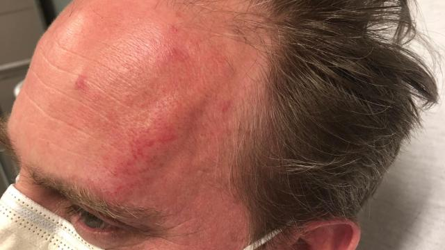 Reporter Paul Woolverton with the Fayetteville Observer was attacked while covering a looting at Cross Creek Mall on Saturday night.