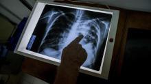 IMAGE: Tuberculosis reported at Durham, Lumberton schools