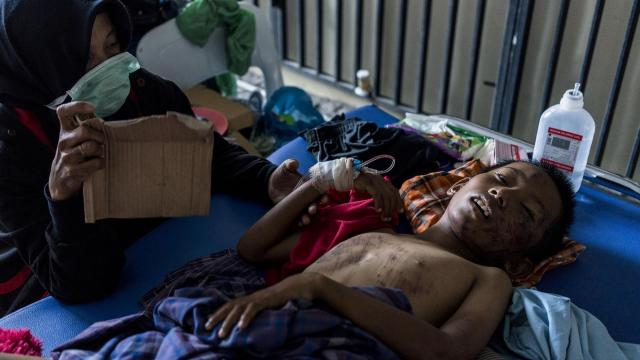 A boy injured in last Friday's earthquake and tsunami recuperates in the Police Hospital in Palu, Indonesia, on Monday, Oct. 1, 2018. At least 832 people had been confirmed dead by Sunday, but officials fear that the death toll from the earthquake and tsunami on the island of Sulawesi could be higher. (Adam Dean/The New York Times)