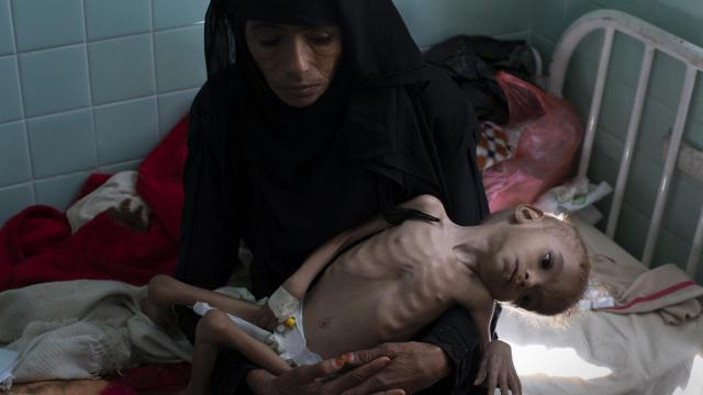 Bassam Mohammed Hassan, who suffers from severe malnutrition and cerebral palsy, is held by Madiya Ahmad, at a hospital in Sanaa, Yemen, on Oct. 15, 2018. Growing international concern over the dire humanitarian situation in Yemen, where the United Nations warns that a mass famine is looming, led to a concerted diplomatic push late October by the U.S. to finally get both sides around the peace table. But the pace of fighting has only escalated. (Tyler Hicks/The New York Times)