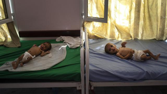 FILE — Children suffering from malnutrition at a UNICEF-run mobile clinic in Aslam, Yemen, Oct. 18, 2018. Amid growing global pressure to stop Saudi-led airstrikes in Yemen, peace talks are planned for December; the United Nations estimates there 85,000 children might have died of hunger in Yemen since 2015. (Tyler Hicks/The New York Times)